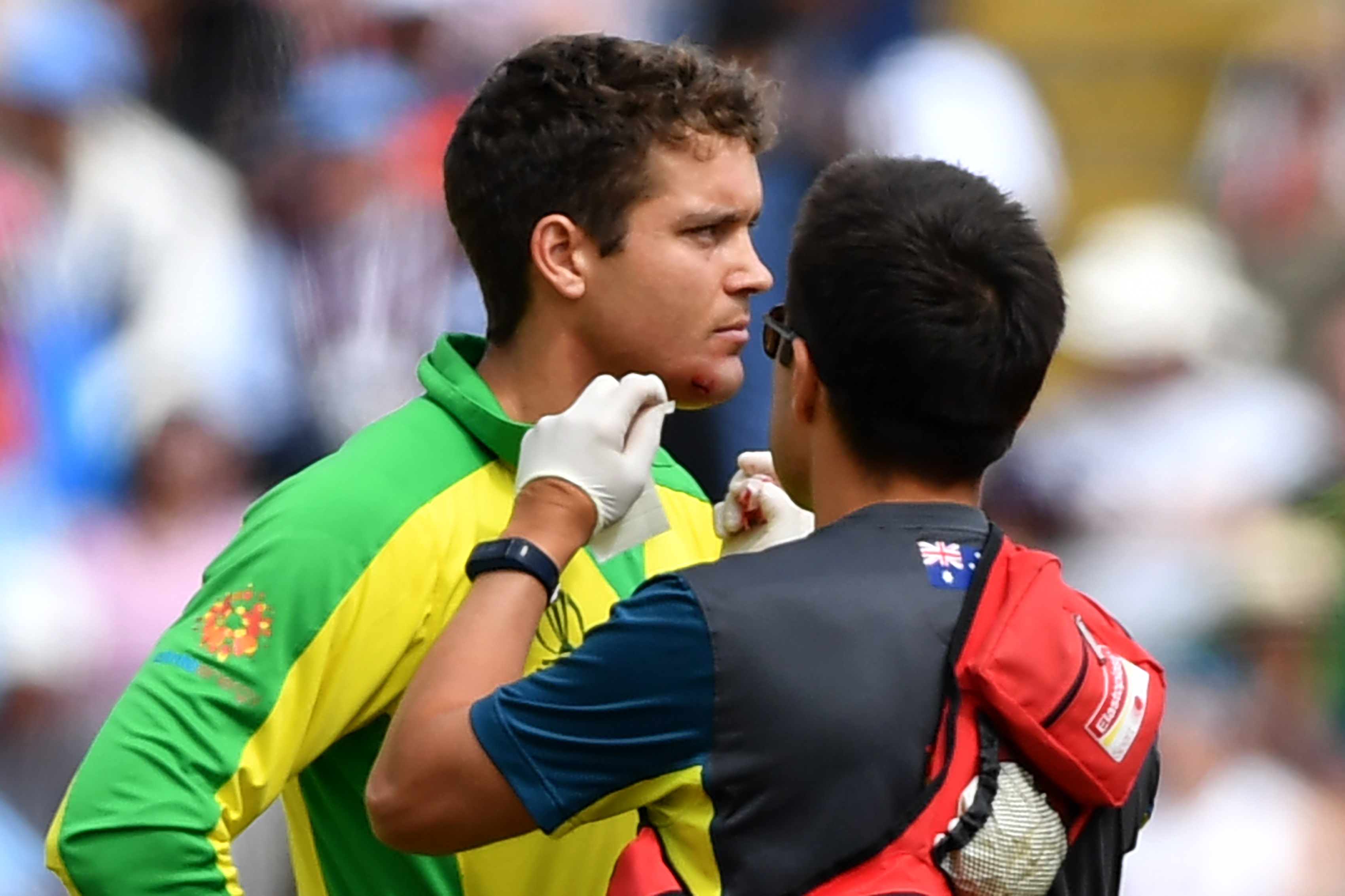 Alex Carey receives medical attention after being hit by a ball. Photo: AFP